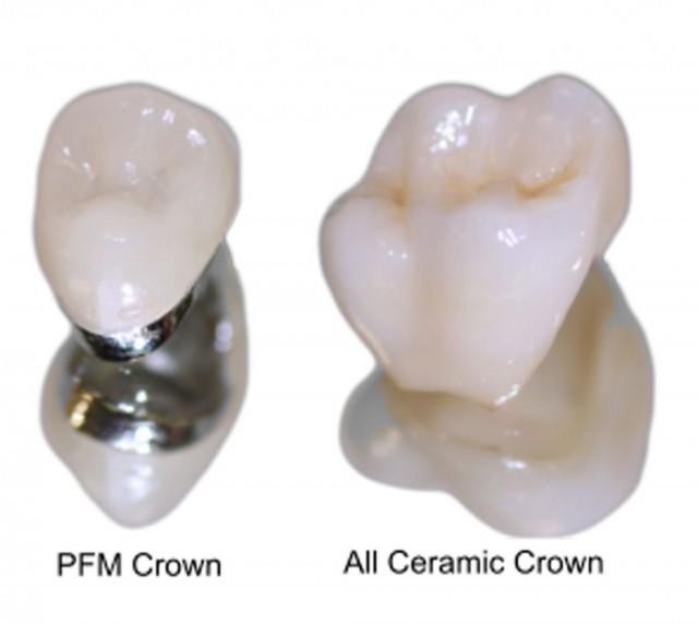 Dental Crowns in Lichfield